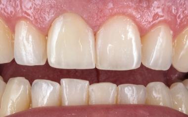 Ill. 9 : La couronne monolithique très esthétique s'intègre naturellement dans l'arcade dentaire.