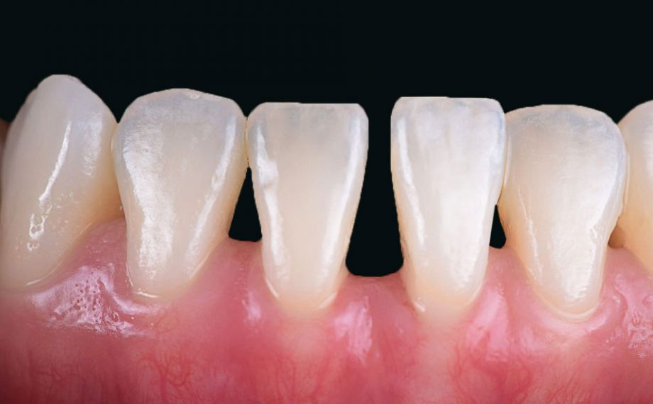 Ill. 1 : Situation initiale avec un diastème étendu entre les deux incisives centrales de la mâchoire inférieure.