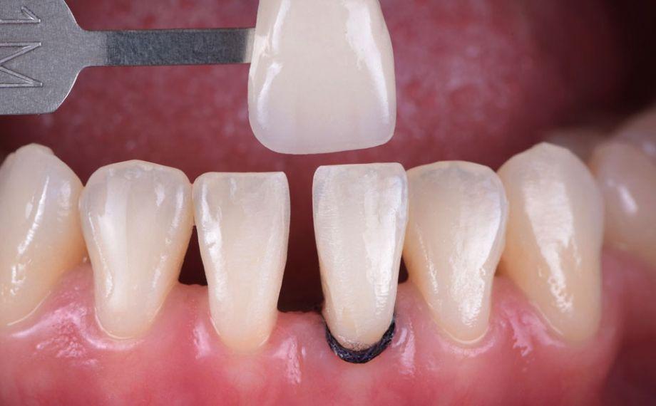 Ill. 2 : La détermination de la couleur de la dent à l'aide du VITA Toothguide 3D-MASTER recouvrait l'espace colori-métrique et rendait possible un choix de bloc adapté.