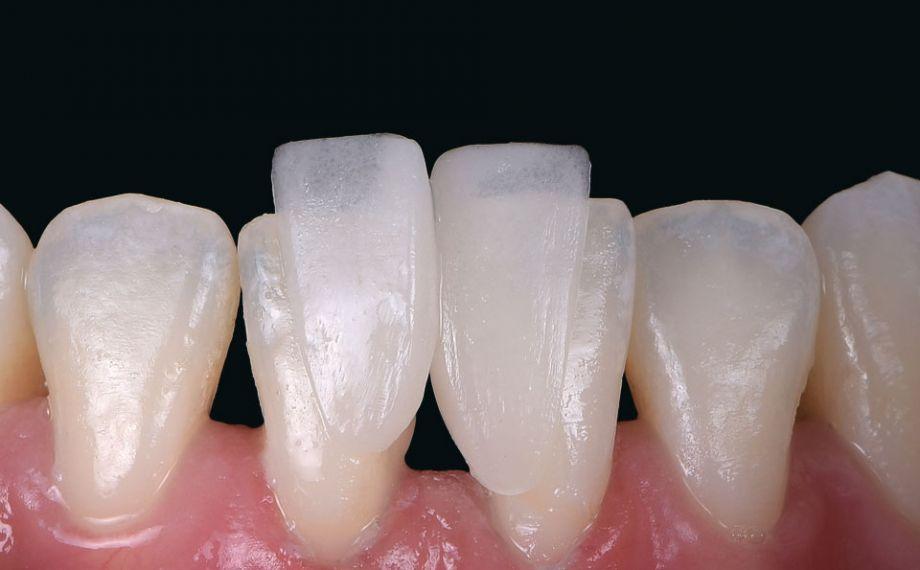 Ill. 6 : L'effet caméléon marqué du matériau en céramique hybride se révélait déjà lors de l'essai clinique.