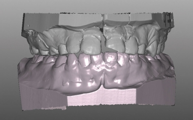 Exemple 1Ill. 6 : Fracture longitudinale de la couronne du vestibulaire dans le maître-modèle maître.