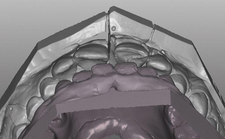 Exemple 1Ill. 7 : L'abrasion semblable à l'émail rend possible un guidage incisif fonctionnel durable sur la 21.
