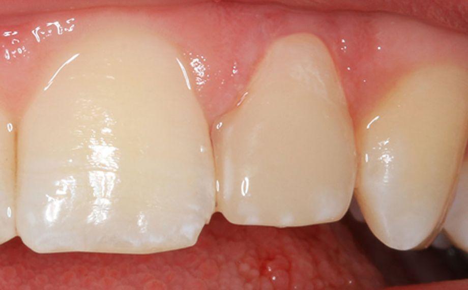Exemple 2Ill. 4 : Résultat : La restauration en céramique hybride s'intégrait de manière étonnante dans la dentition naturelle.