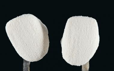 Ill. 7 : Pour le lait d'opaque, OPAQUE POWDER A1 (OP1) a été en plus pulvérisé à l'aide du VITA SPRAY-ON.