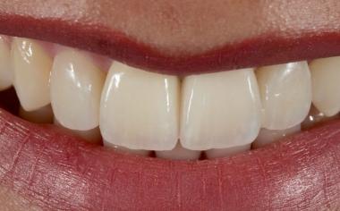 Ill. 13 : Les bords symétriques de la zone incisale s'harmonisent avec la ligne des lèvres.