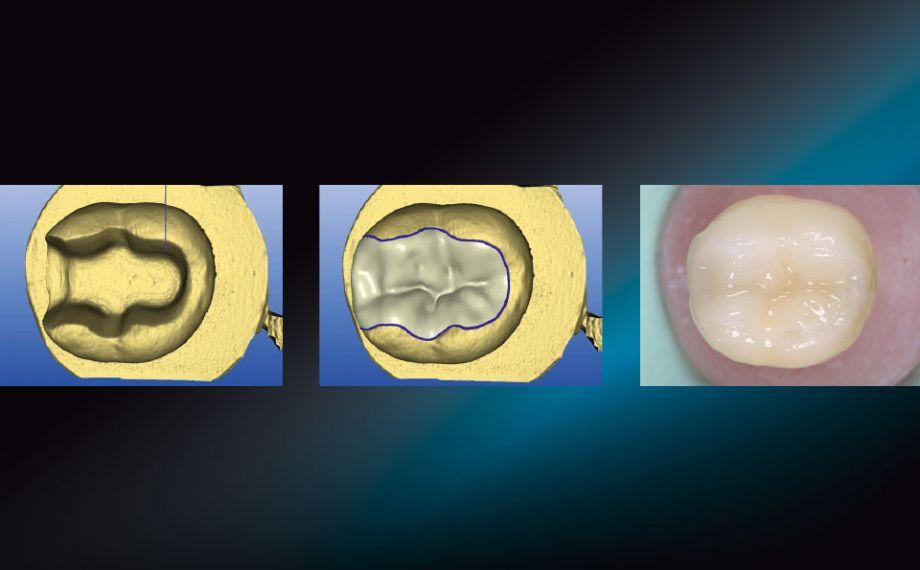 Fig. 1: Nella cavità del dente test sono stati fissati provvisoriamenre con glicerina in gel inlays in differenti materiali CAD/CAM.