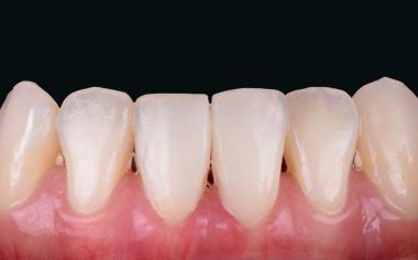 Fig. 8: Risultato: Con l'efficiente workflow digitale la ceramica ibrida VITA ENAMIC ha consentito un risultato cosmetico altamente estetico.