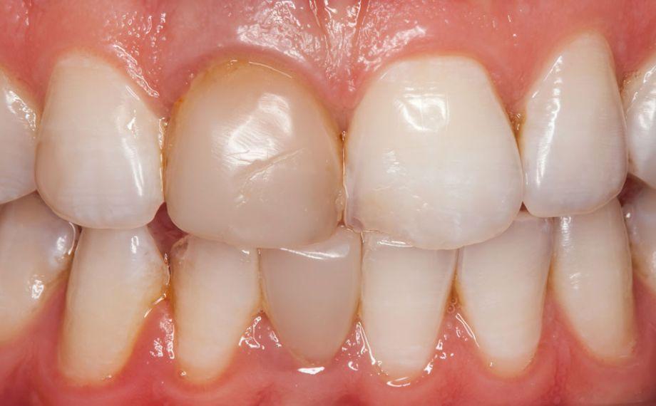 Fig. 1: Situazione iniziale: Dopo il bleaching preprotesico era riconoscibile un'evidente differenza cromatica tra otturazione in composito e sostanza dentaria dura.