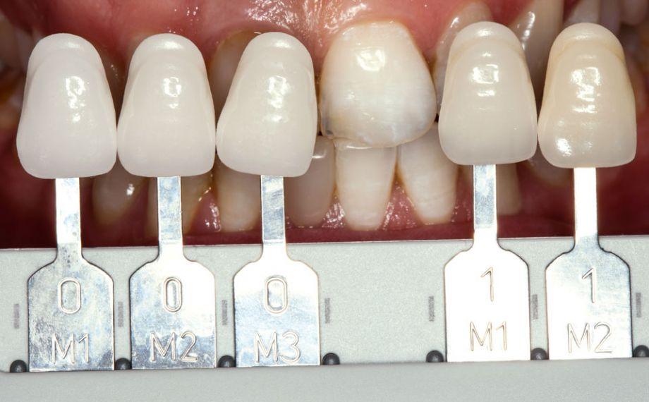 Fig. 2: Con la VITA Linearguide 3D-MASTER si è determinato esattamente il colore dei denti e selezionato il corrispondente blocchetto di colore 0M1.