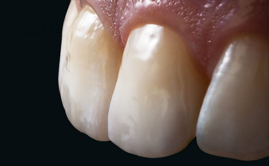 Fig. 13: Morfologia e tessitura superficiale dei due restauri in ceramica integrale non sono più distinguibili dai denti naturali contigui.