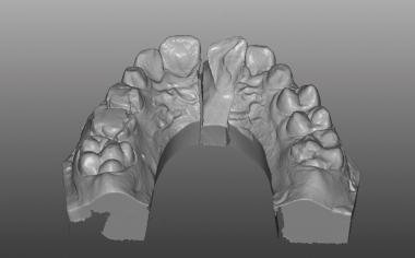 Caso clinico 1Fig. 5: Scoprimento palatale della frattura dopo gengivectomia nel modello virtuale.