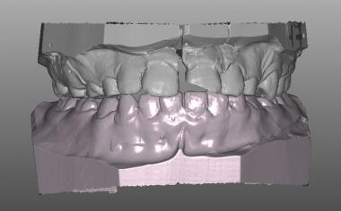 Caso clinico 1Fig. 6: Frattura longitudinale coronale da vestibolare sul modello maestro virtuale.