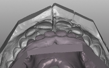 Caso clinico 1Fig. 7: L'abrasione simile allo smalto rende possibile una durevole guida incisiva funzionale attraverso il dente 21.