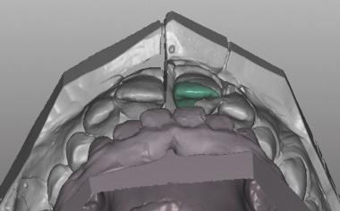 Caso clinico 1Fig. 8: Grazie ai ridotti spessori minimi nella zona di contatto è stata possibile una progettazione orientata al difetto.