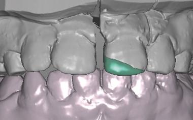 Caso clinico 1Fig. 10: Anche da vestibolare il restauro segue l'andamento della frattura.