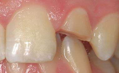 Caso clinico 2Fig. 3: La preparazione marginale minimamente invasiva ha consentito un ancoraggio duraturo del restauro.