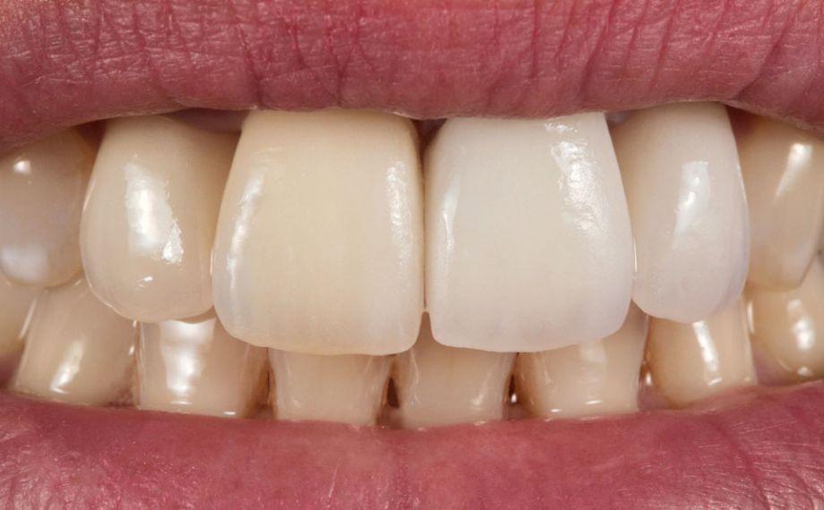 Fig. 4: Inizialmente la cromaticità della corona 21 non si adatta perfettamente nella dentatura residua.