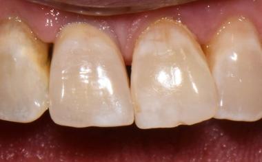 Fig. 7: La corona si integra esteticamente nella dentatura residua.