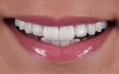 Fig. 10: Nella zona estetica l'arcata dentaria si armonizza con l'andamento labiale.