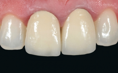 Fig. 1: Inizialmente le corone in metallo-ceramica sui denti 11 e 21 presentavano deficit estetici.