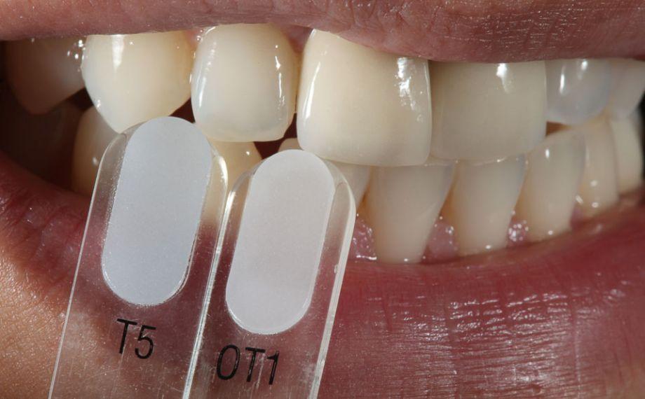 Fig. 4: Con i campioni colore VITA VMK Master TRANSLUCENT sono state identificate nuances traslucenti.