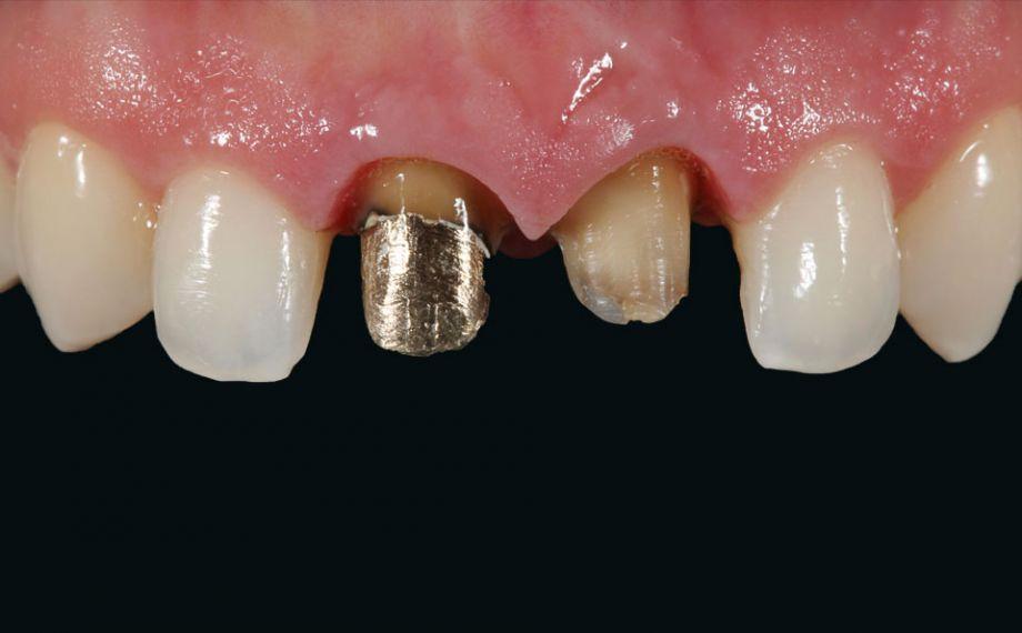 Fig. 5: Dato che l'incisivo 11 è riabilitato con un perno-moncone metallico, si è deciso per strutture coronali in lega non nobile.