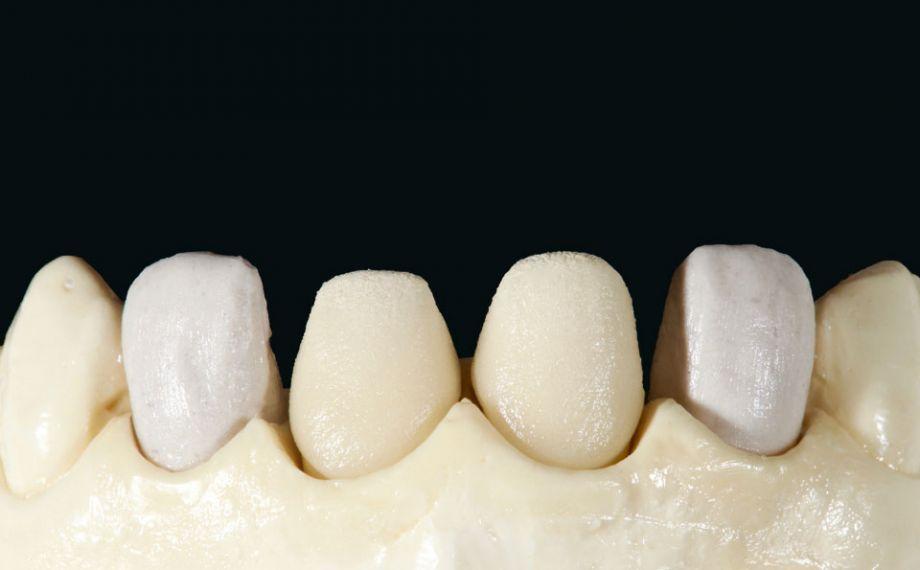 Fig. 8: La prima cottura della dentina è stata eseguita con mit VITA VMK Master LUMINARY 1 (bianco) e 4 (marrone-arancio chiaro).
