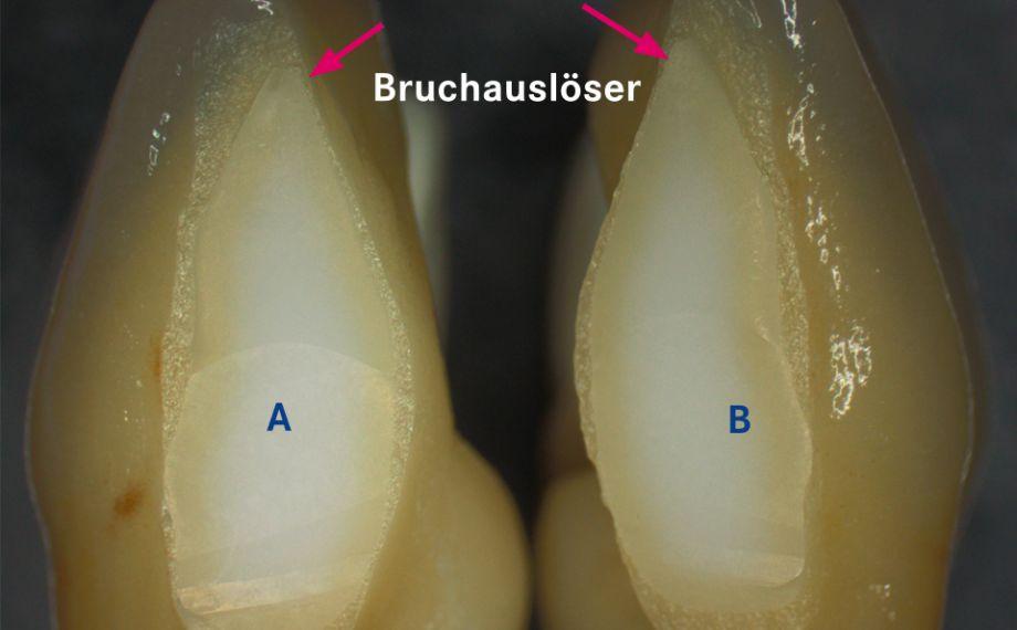 Abb. 1a: Das Gerüst wurde aus ästhetischen Gründen zwischen 31 und 41 nach der Sinterung separiert.