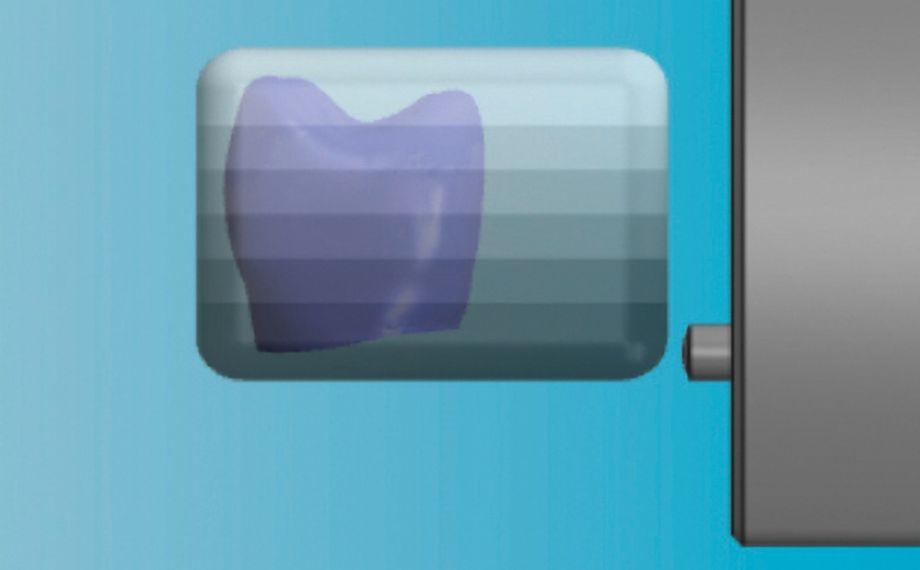Abb. 7: Mittels vertikaler Positionierung der Krone im virtuellen Rohling konnte der Farbverlauf gezielt gesteuert werden.