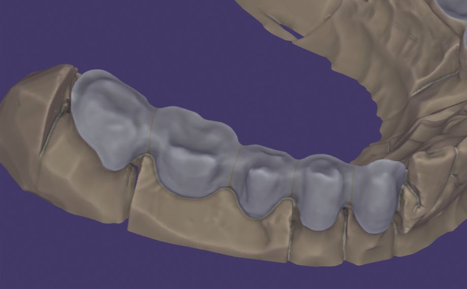 Abb. 2: Das anatomisch reduzierte Brückengerüst in der exocad-Software.