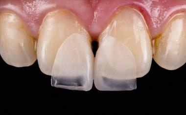 Abb. 4: Die grazilen Microveneers an Zahn 11 und 21 bei der klinischen Einprobe.