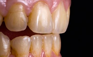 Abb. 8: Ergebnis: Der Patient war mit dem hochästhetischen Ergebnis in nur einer Sitzung sehr zufrieden.