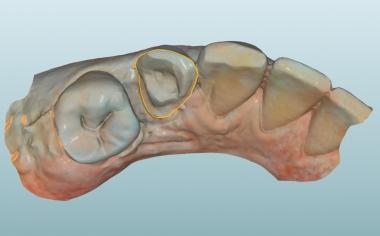Abb. 5: Nach dem intraoralen Scan wurde die Präparationsgrenze festgelegt.