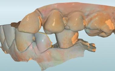 Abb. 6: Mit einem Vestibulärscan konnte die habituelle Interkuspidation übertragen werden.