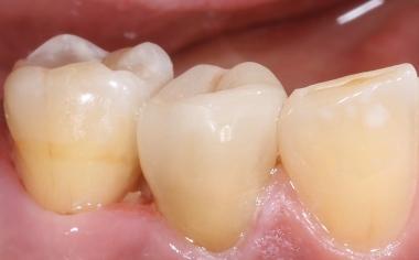 Abb. 12: Von vestibulär waren keine Übergänge zwischen Restauration und Zahn sichtbar.