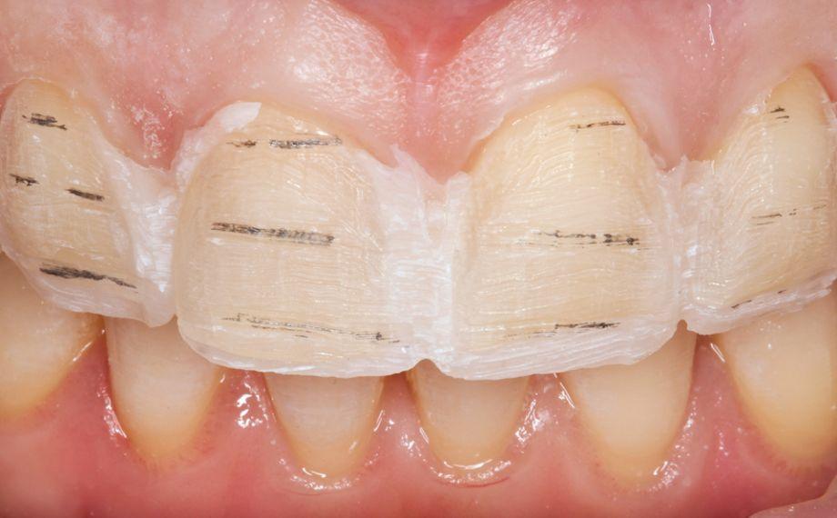 Abb. 9: So konnte eine kontrollierte und minimalinvasive Präparation durchgeführt werden.