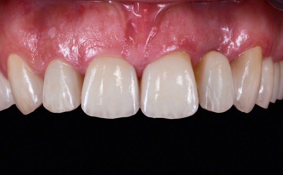 Abb. 8 Ergebnis: Die Restaurationen harmonierten in Form und Farbe mit der natürlichen Zahnsubstanz.