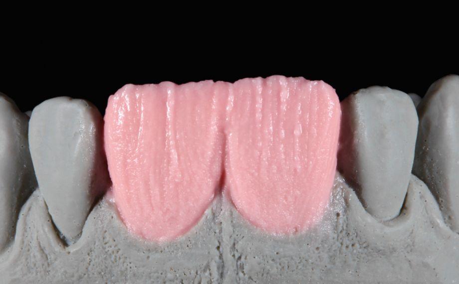Abb. 5: Der Dentinkern wurde mit BASE DENTINE A2 geschichtet.