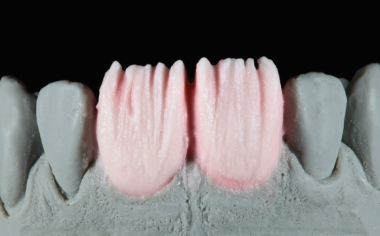 Abb. 7: Um stellenweise eine inzisale Lichttransmission zu gewährleisten, diente ein anatomisches Cut-back.