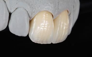 Abb. 12: Nach der Ausarbeitung und Glasur hatten die Kronen eine absolut natürliche Wirkung.