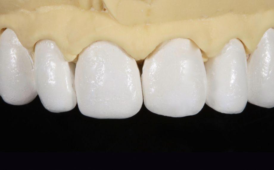 Abb. 3: Das Meistermodell mit feuerfesten Stümpfen und den anatomisch reduzierten Veneers nach dem Dentinbrand.
