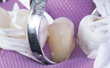 Abb. 11: Die konditionierte, minimalinvasive Präparation an Zahn 14.