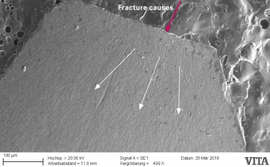 Fig. 1c: Detailed view in the SEM shows the separated portion of the framework as the cause of the fracture.