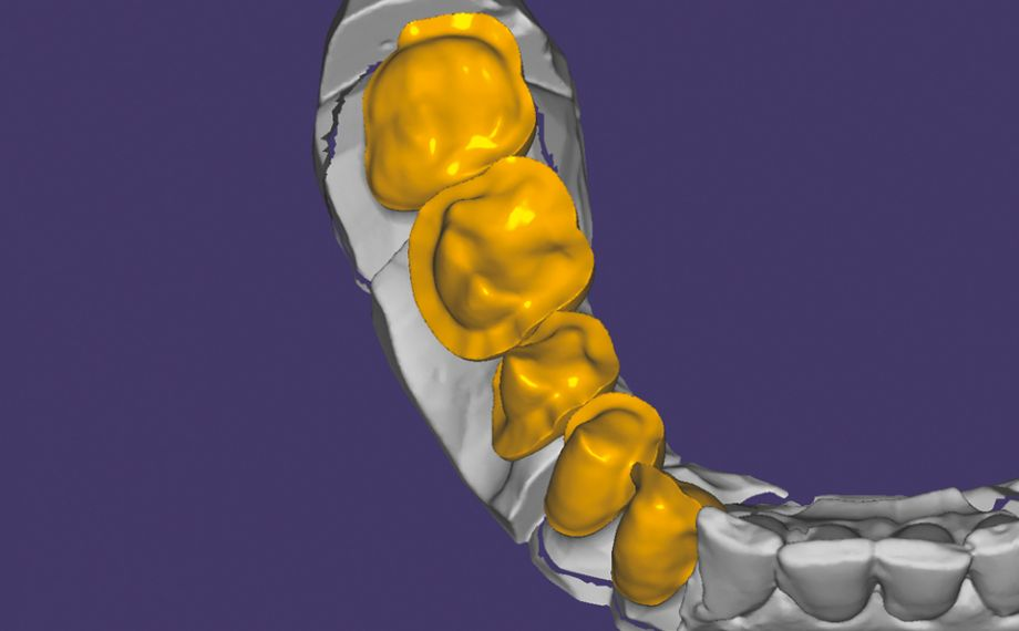 Fig. 3: Veneering structures made of hybrid ceramic were constructed on the zirconia framework produced with CAD/CAM support.