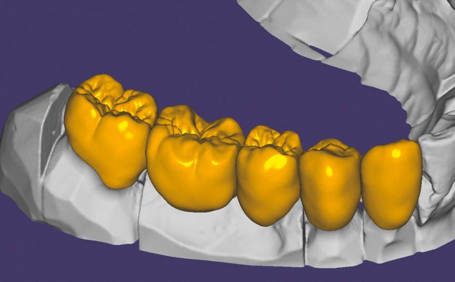 Fig. 4: Thanks to the low minimum wall thicknesses of the hybrid ceramic of up to 0.2 mm, the morphology is very natural.