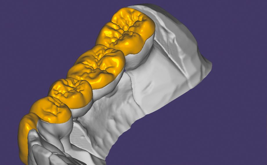 Fig. 5: The veneering structures in the equatorial area of the anatomically reduced framework construction end in the palatal area.