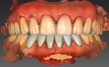 Fig. 9: The virtual construction of the veneers in the lower jaw.