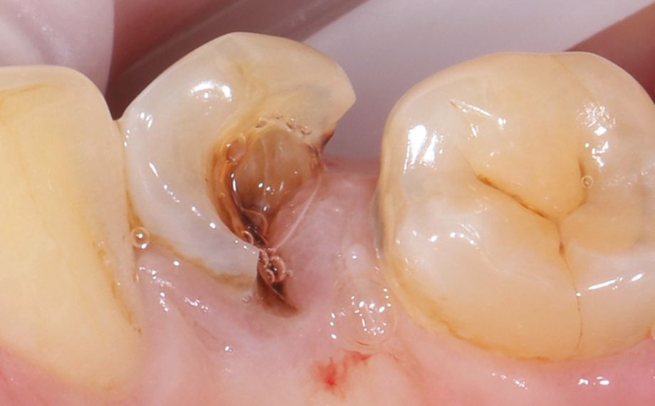 Fig. 1: Initial situation: Tooth 34 was severely damaged. Gingival tissue had overgrown into the cavity.