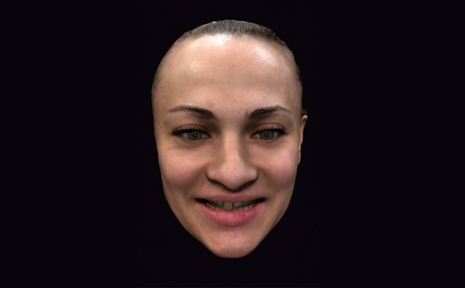 Fig. 2: A facial scan with the smartphone app enabled initial virtual planning together with the patient.