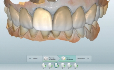 Fig. 7: The intraoral mock-up was scanned with the MyCrown System.